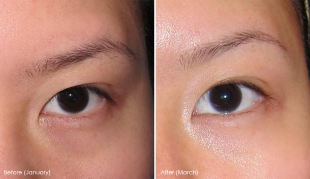 Shiseido White Lucent Anti Dark Circles Eye Cream Joey Space